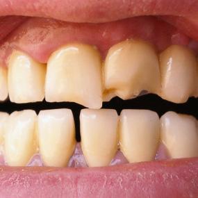 булимия и зубы